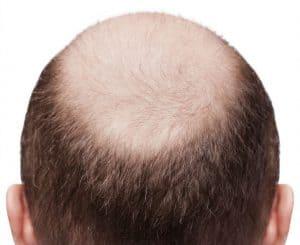 L'alopecia