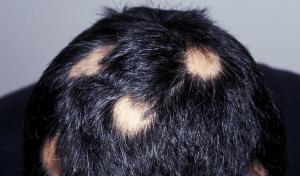 Patchwork alopecia